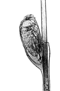Les helminthes dans lanus les signes